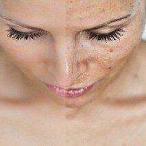 кислотная чистка кожи