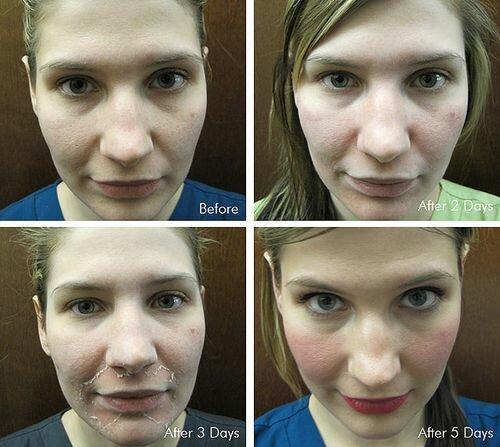 фото до и после срединного пилинга