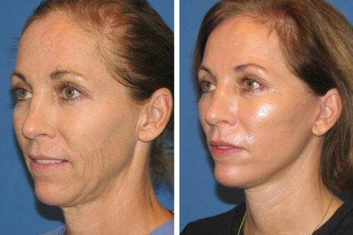 ультразвуковой пилинг фото до и после