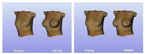 моделирование груди