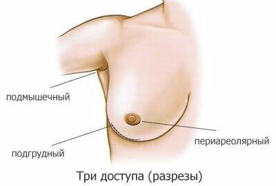 эндоскопическая пластика бюста
