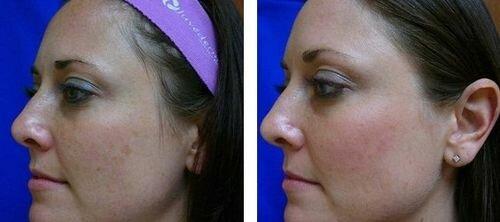 фото до и после энзимногог пилинга