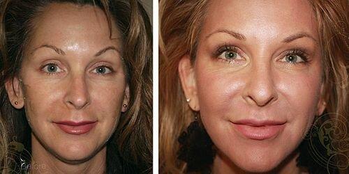 Фото до и после химических пилингов