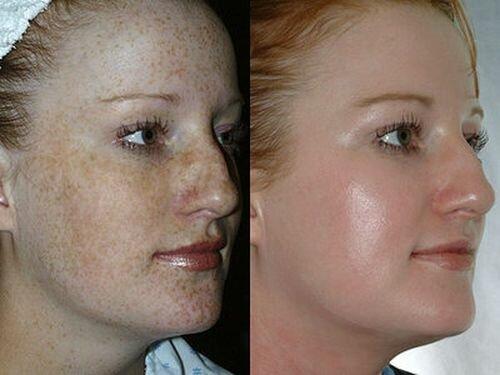 Фото пациенток до и после глубокого пилинга