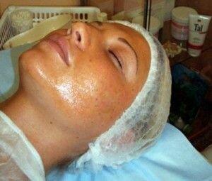 чистка кожи фенолом
