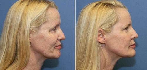фото до и после лазерного пилинга
