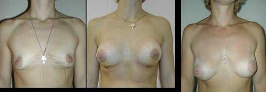 развитие мастоптоза