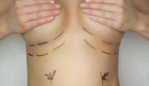 имплантация груди