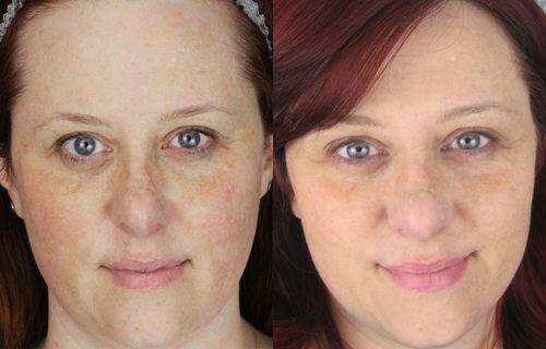 Фото до и после ретинолового пилинга