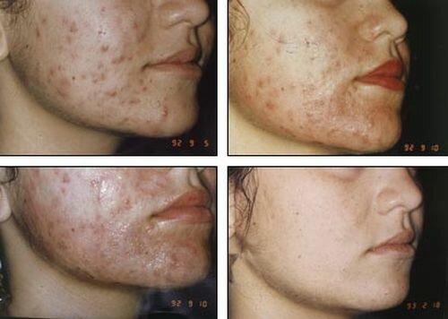 Фото до и после миндального пилинга