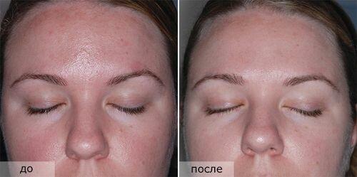 cалициловый пилинг - фото до и после