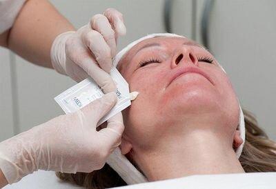 ретиноловый пилинг кожи