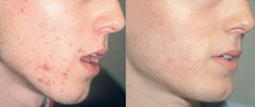 фото до и после пилинга салициловой кислотой