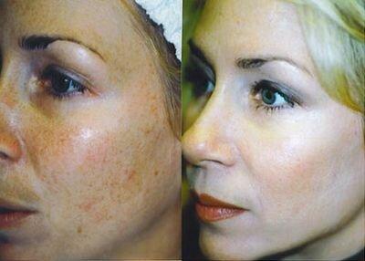 фото до и после применения салициловой кислоты