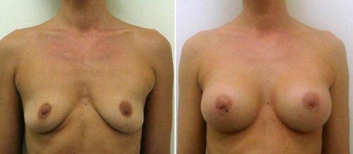 фото до и после эндоскопической пластики бюста