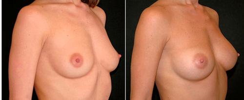 увеличение груди гиалуроновой кислотой фото до и после