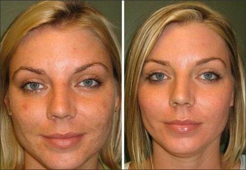 фото до и после химического поверхностного пилинга