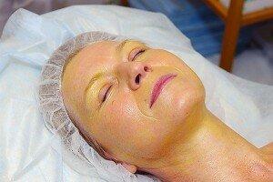 женщина на процедуре желтого пилинга