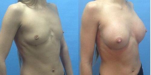 фото до и после маммопластики