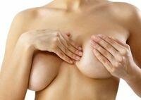 обвисшая грудь мастоптоз