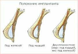 положение импланта