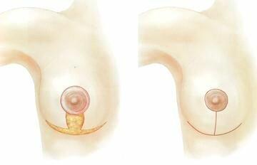 классическая маммопластика