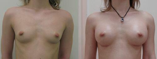 фото до и после установки силиконовой груди