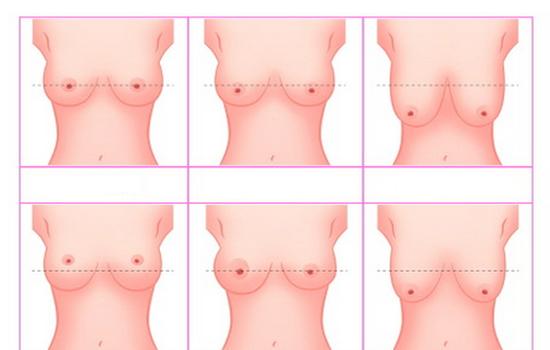 степени мастопексии