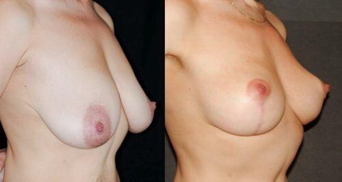 фото до и после периареолярной мастопексии