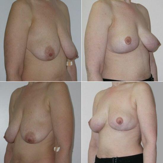 периареолярная мастопексия на фото до и после
