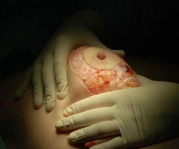 мастопексия - удаление избытка кожи
