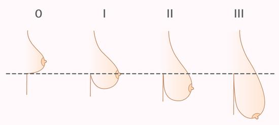 стадии мастоптоза