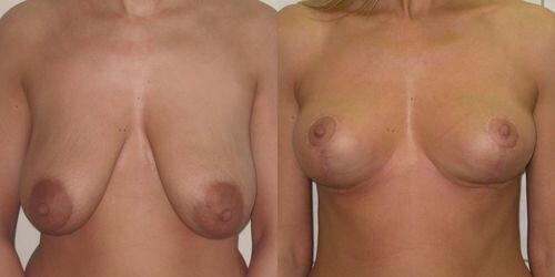 Фото до и после операции по одновременной мастопексии и эндопротезированию груди