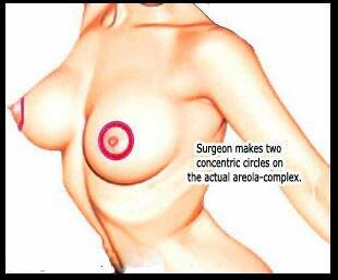 Операция по уменьшению ареолы 2