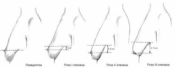 стадии птоза молочных желез