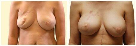 шрамы на груди