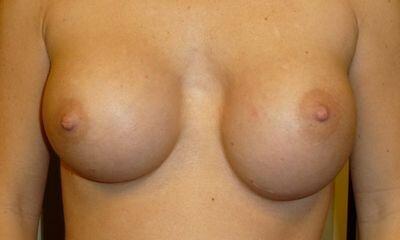 развитие серомы на груди