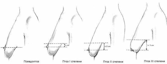 vастоптоз - степени