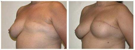 полное удаление груди
