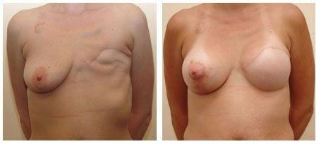 восстановленная грудь