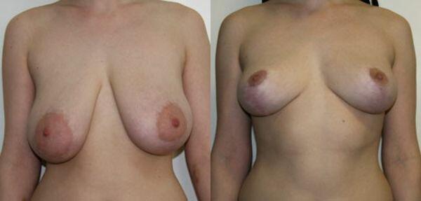 фотодо и после уменьшения груди