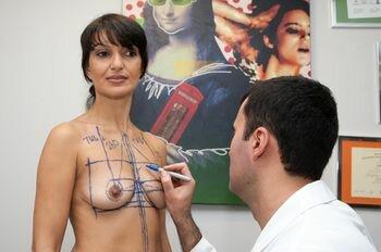 разметка груди перед операцией