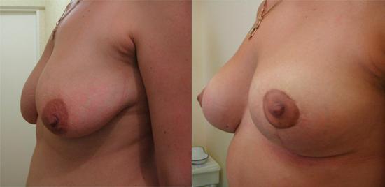 вертикальная мастопексия на фото до и после