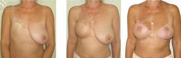 реконструкция молочной железы фото до и после