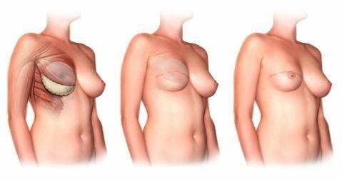 комбинированная пластика груди