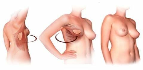 пересадка кожно-мышечного лоскута