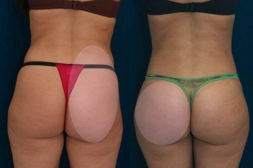 Фото до и после подтяжки ягодиц нитями