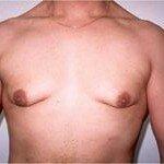 гинекомастия причины