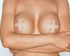 операция на груди