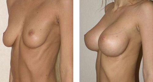 Круглые импланты фото до и после